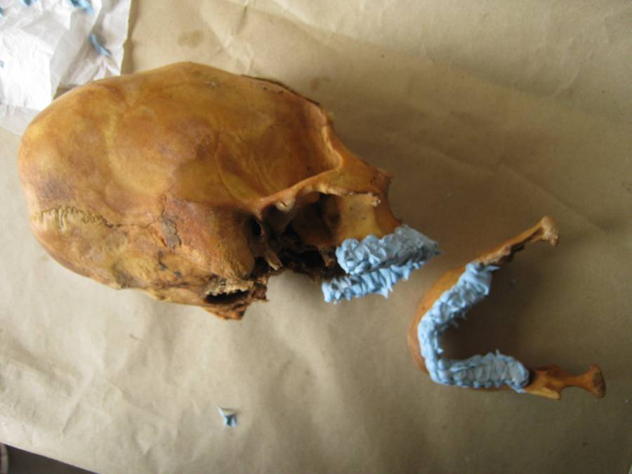 Here is a skull, I believe with deformation, with its mandible drying with the goo on.