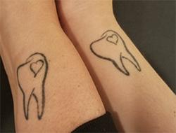 Tooth tattoos